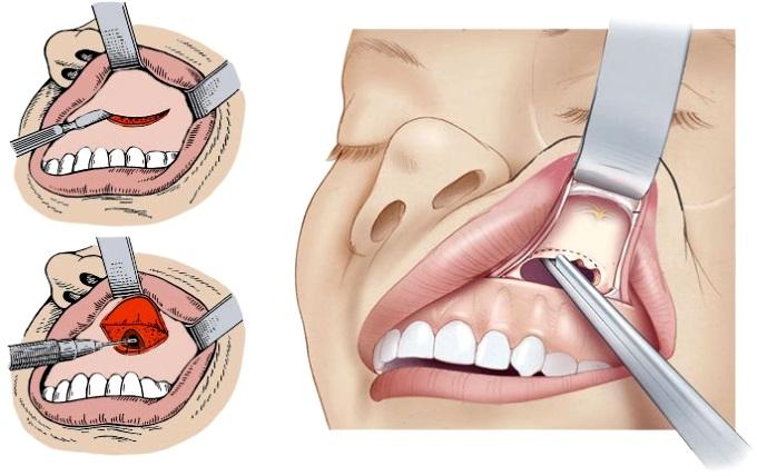 Способы удаления кисты носовой пазухи