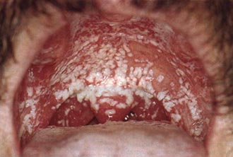 Грибковая ангина лечение у взрослых
