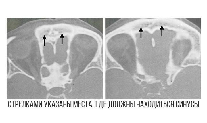 Компьютерная томография лобных пазух