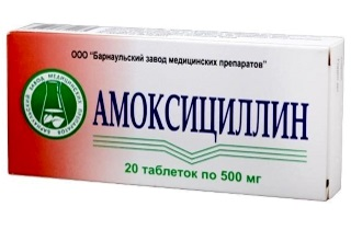 Какие антибиотики подходят для лечения фарингита